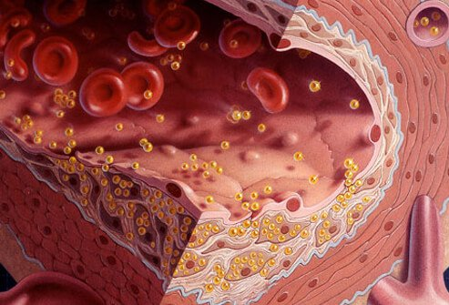 cholesterol-101-s2-illustration-of-clogged-artery