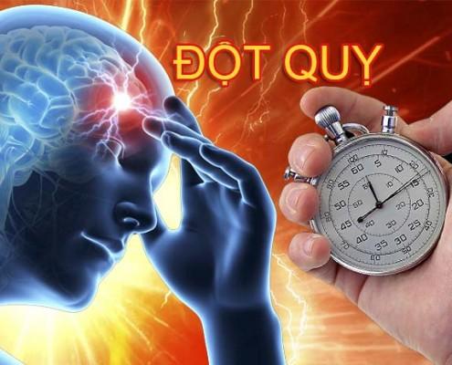 Đột quỵ - Tai biến mạch máu não