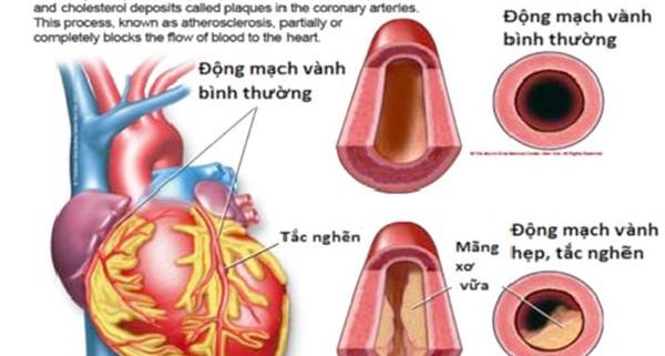 Bệnh động mạch vành-1