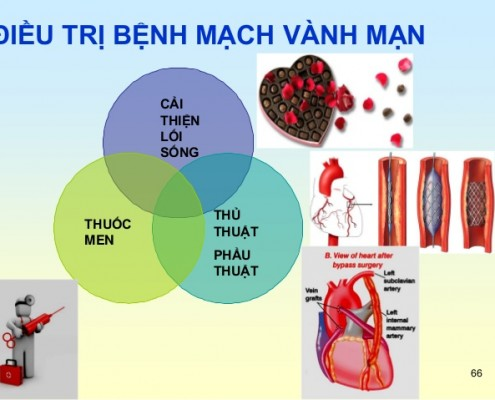 dieu-tri-benh-mach-vanh-1