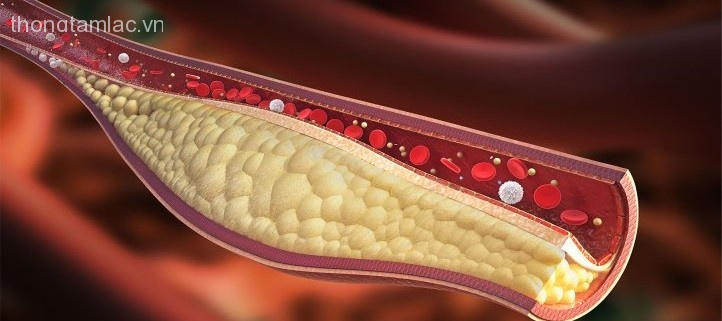 Calcium-Buildup-in-Young-Arteries-May-Signal-Heart-Attack-Risk-1440x810