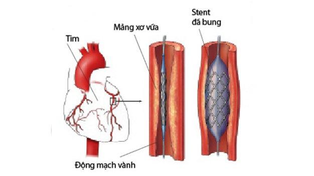 kiem-soat-benh-tim-mach-bang-cach-dung-stent-chat-luong-cao-1
